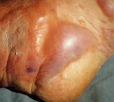 gas gangrene
