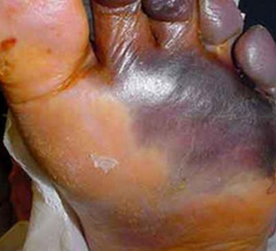 wet gangrene