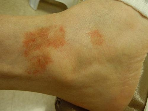 Capillaritis on the lower leg