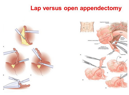 A comparison image between minimally invasive removal of the appendix and open appendectomy location photo picture