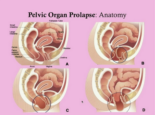 A transvaginal mesh is used to treat and manage pelvic organ prolapse image photo picture